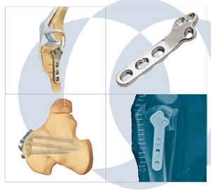 関節手術のイメージ